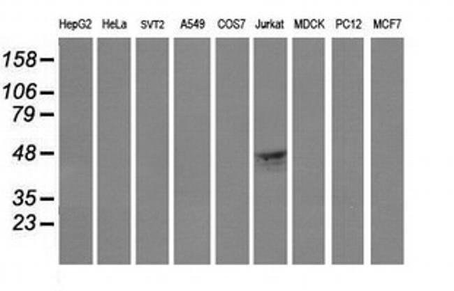 CD1C Mouse anti-Human, Clone: OTI2D4, liquid, TrueMAB  100 µL; Unconjugated