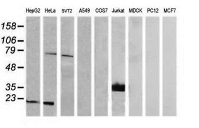 CD1C Mouse anti-Human, Clone: OTI5A8, liquid, TrueMAB  100 µL; Unconjugated