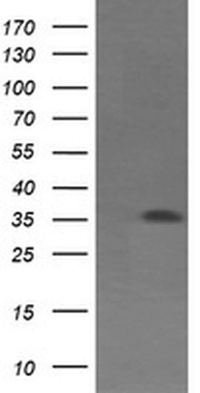 CD1C Mouse anti-Canine, Human, Clone: OTI1E10, liquid, TrueMAB  100 µL;