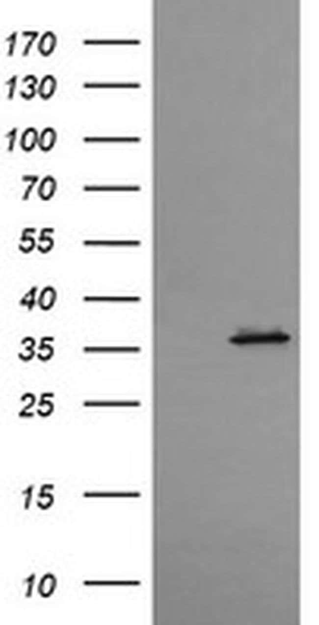 CD1C Mouse anti-Human, Clone: OTI5B8, liquid, TrueMAB  100 µL; Unconjugated
