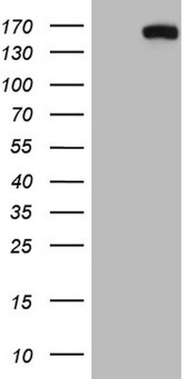 CD22 Mouse anti-Human, Clone: OTI2A4, lyophilized, TrueMAB  100 µg;