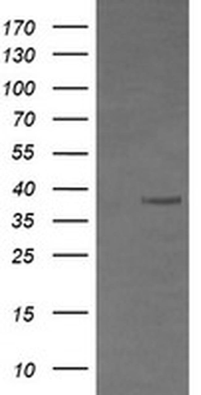 CD33 Mouse anti-Human, Clone: OTI2E4, liquid, TrueMAB  100 µL; Unconjugated