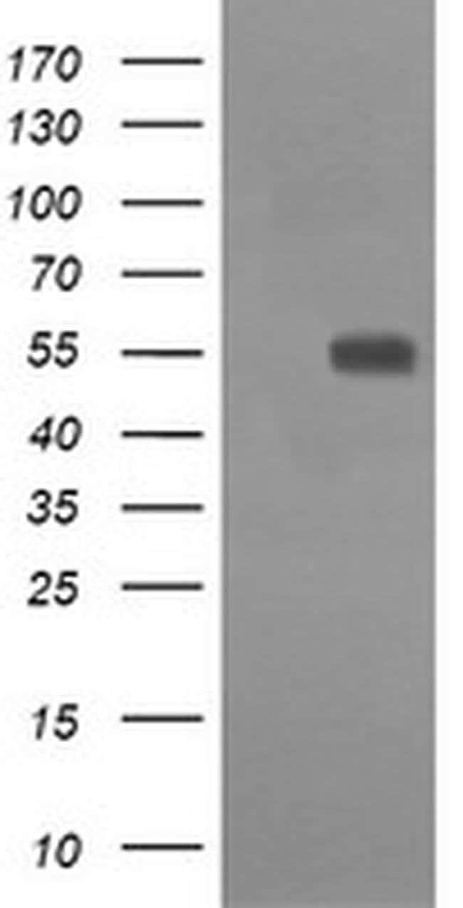 CD33 Mouse anti-Human, Clone: OTI1E4, liquid, TrueMAB  100 µL; Unconjugated