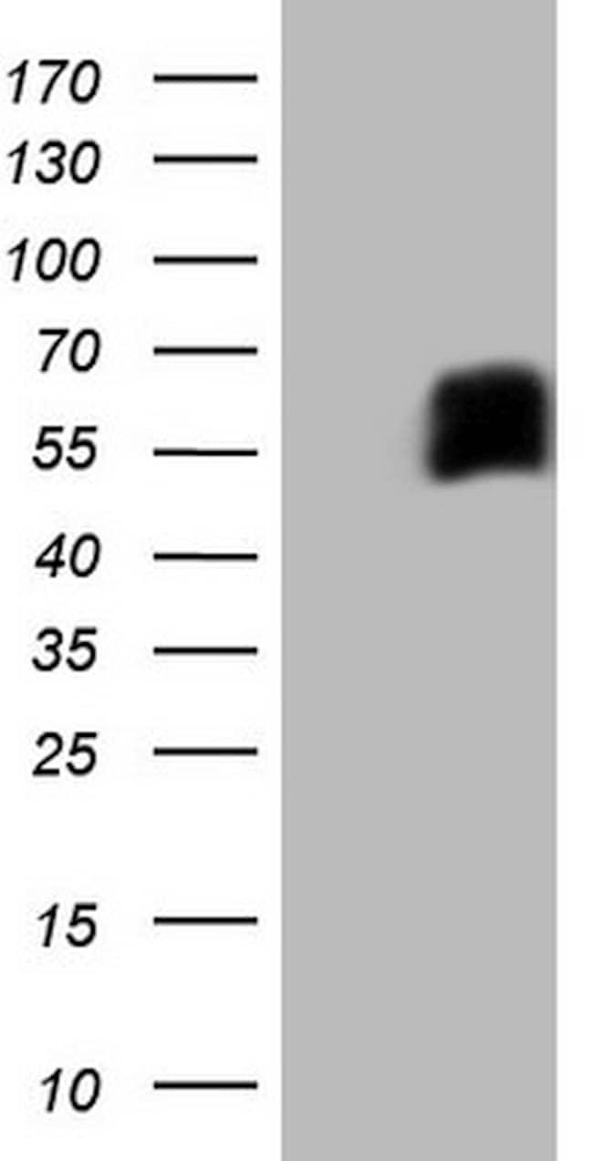 CD33 Mouse anti-Human, Clone: OTI7G8, lyophilized, TrueMAB  100 µg;