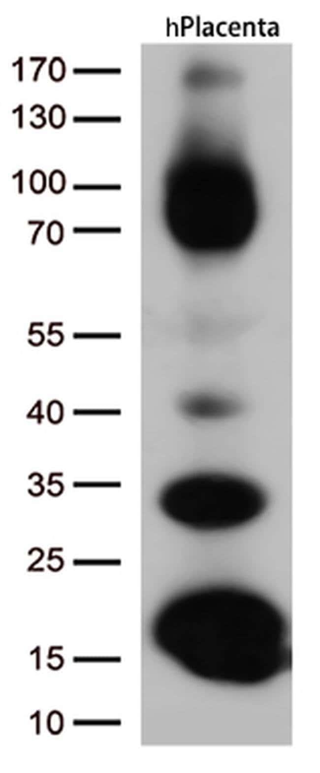 CD36 Mouse anti-Human, Clone: OTI6A5, liquid, TrueMAB  100 µL; Unconjugated