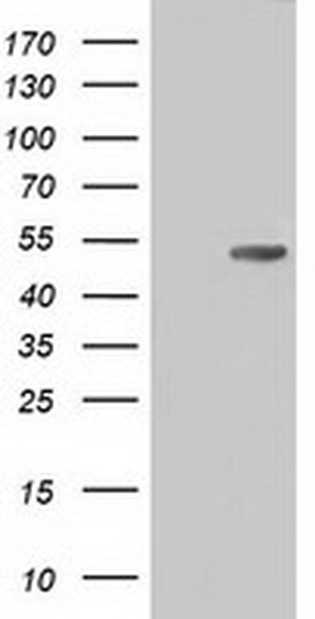 CD5 Mouse anti-Human, Clone: OTI4H3, liquid, TrueMAB  100 µL; Unconjugated