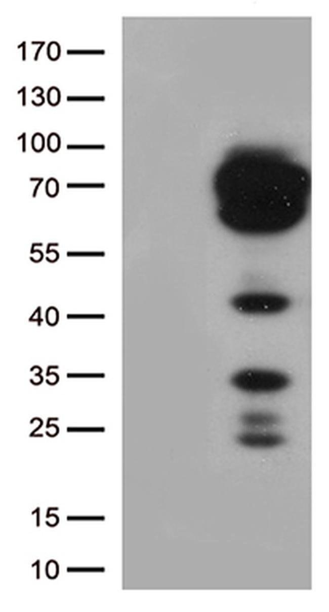 CD5 Mouse anti-Human, Clone: OTI7A7, liquid, TrueMAB  100 µL; Unconjugated