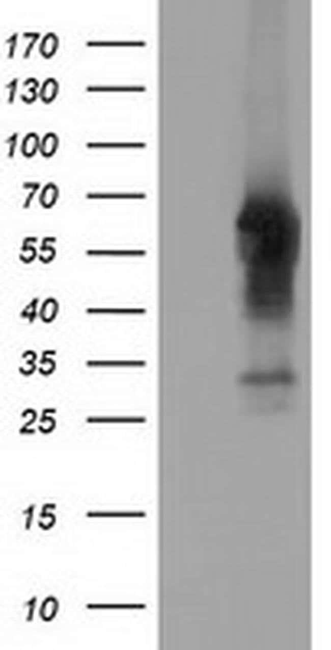 CD5 Mouse anti-Human, Clone: OTI2B8, liquid, TrueMAB  100 µL; Unconjugated