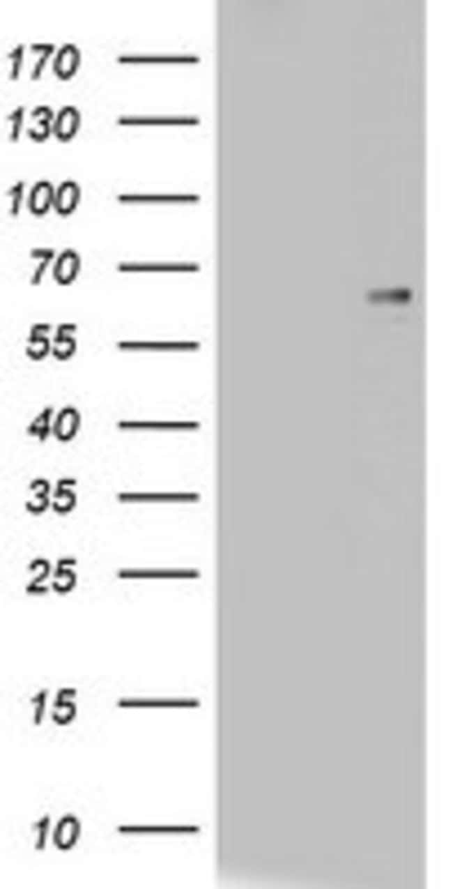 CD5 Mouse anti-Human, Clone: OTI8C10, lyophilized, TrueMAB  100 µg;