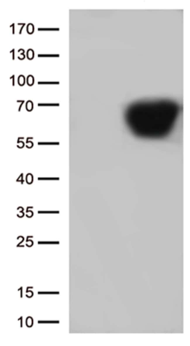 CD5 Mouse anti-Human, Clone: OTI6C9, lyophilized, TrueMAB  100 µg;