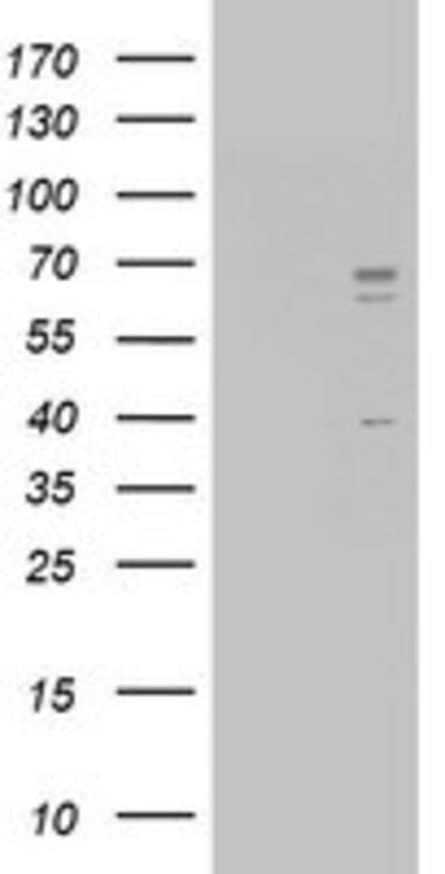 CD5 Mouse anti-Human, Clone: OTI4F9, lyophilized, TrueMAB  100 µg;