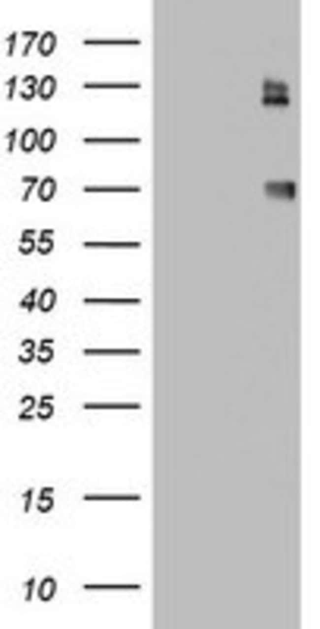 CD68 Mouse anti-Human, Clone: OTI4G1, lyophilized, TrueMAB  100 µg;