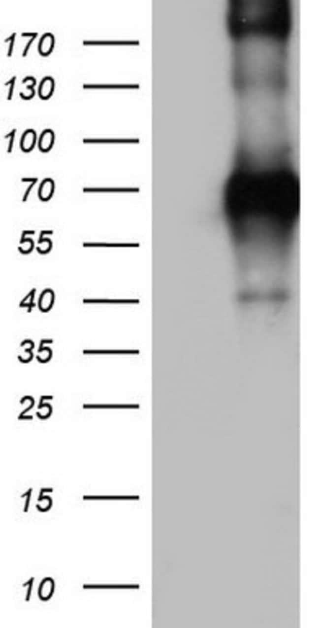 CD68 Mouse anti-Human, Clone: OTI6D3, lyophilized, TrueMAB  100 µg;