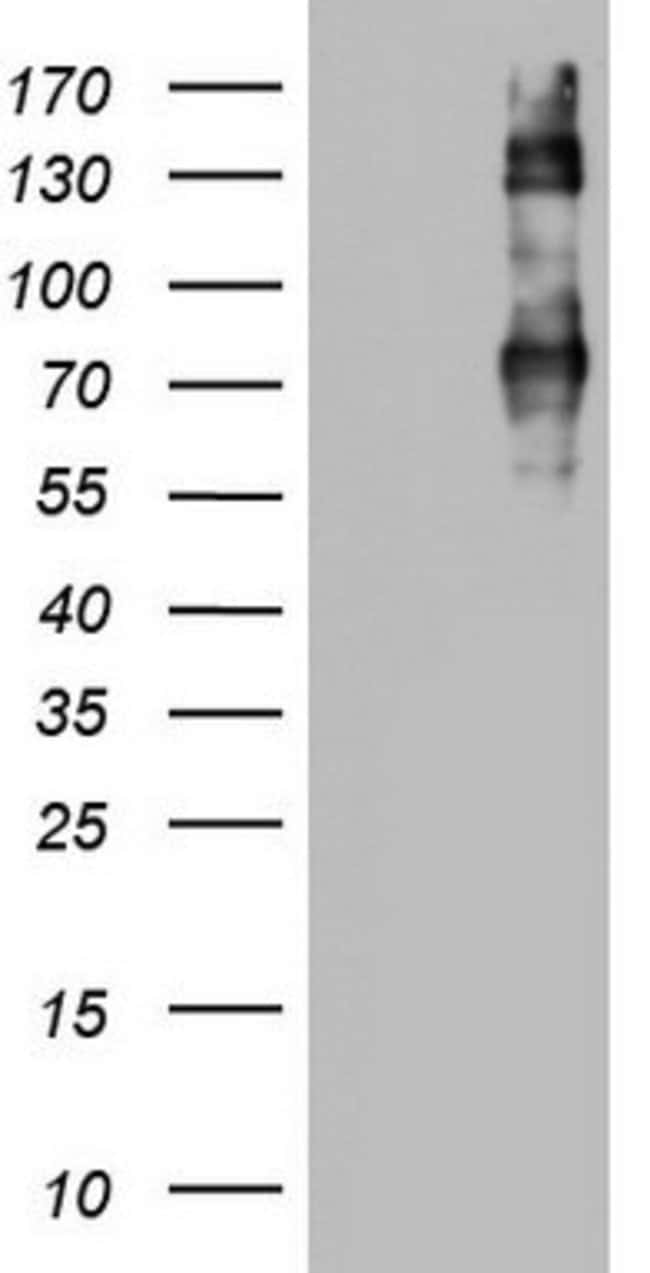 CD68 Mouse anti-Human, Clone: OTI6A10, lyophilized, TrueMAB  100 µg;