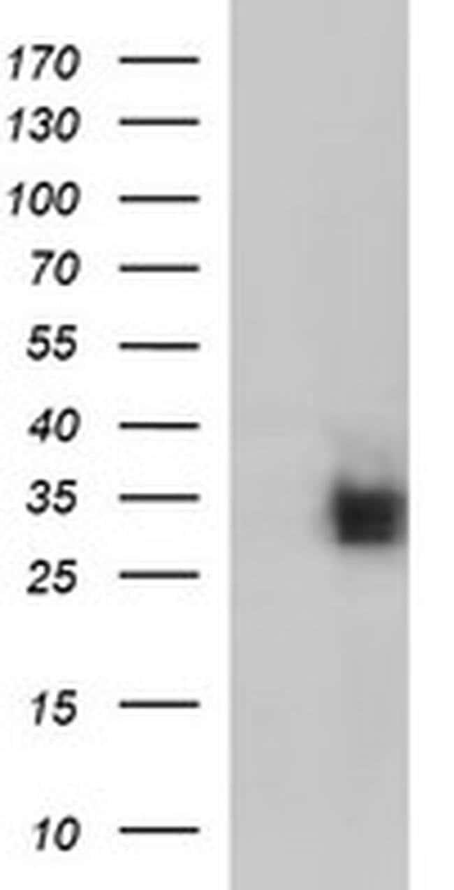 CD7 Mouse anti-Human, Clone: OTI1A6, liquid, TrueMAB  100 µL; Unconjugated