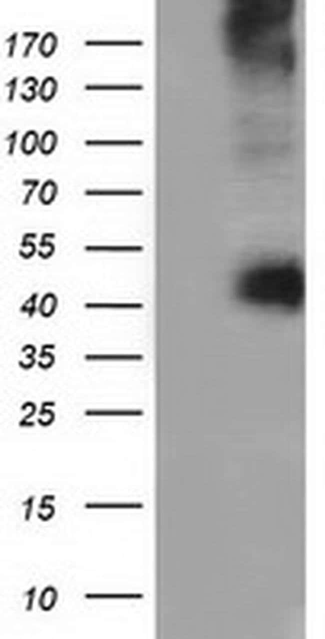 CD80 Mouse anti-Human, Clone: OTI2B11, liquid, TrueMAB  100 µL; Unconjugated