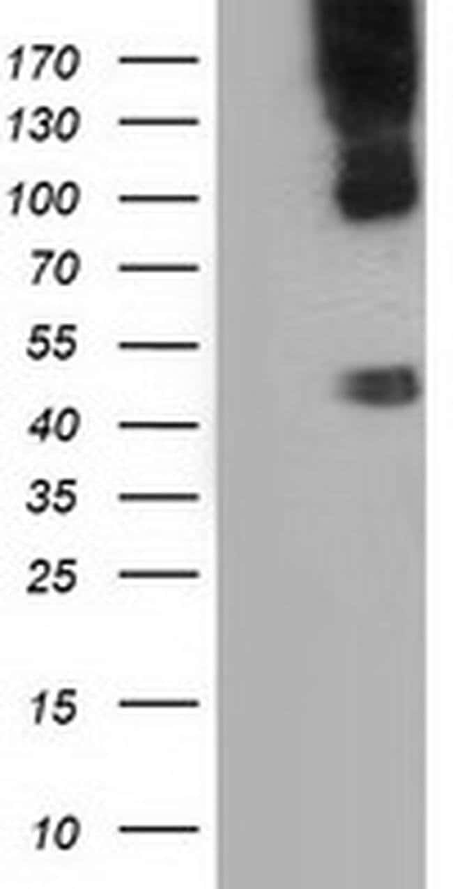 CD80 Mouse anti-Human, Clone: OTI7E4, liquid, TrueMAB  100 µL; Unconjugated