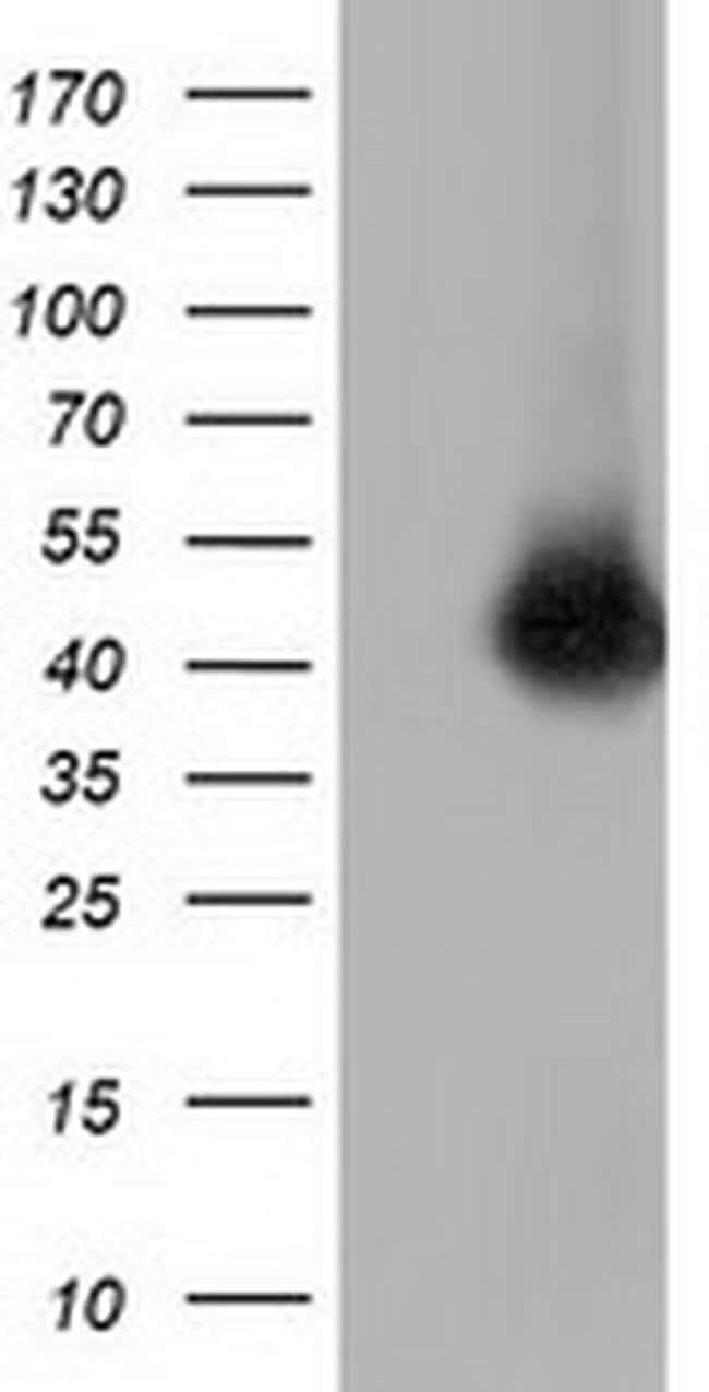 CD80 Mouse anti-Human, Clone: OTI6H7, liquid, TrueMAB  100 µL; Unconjugated