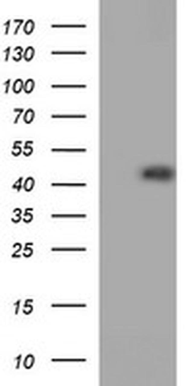 CDC123 Mouse anti-Human, Clone: OTI3B9, liquid, TrueMAB  100 µL; Unconjugated