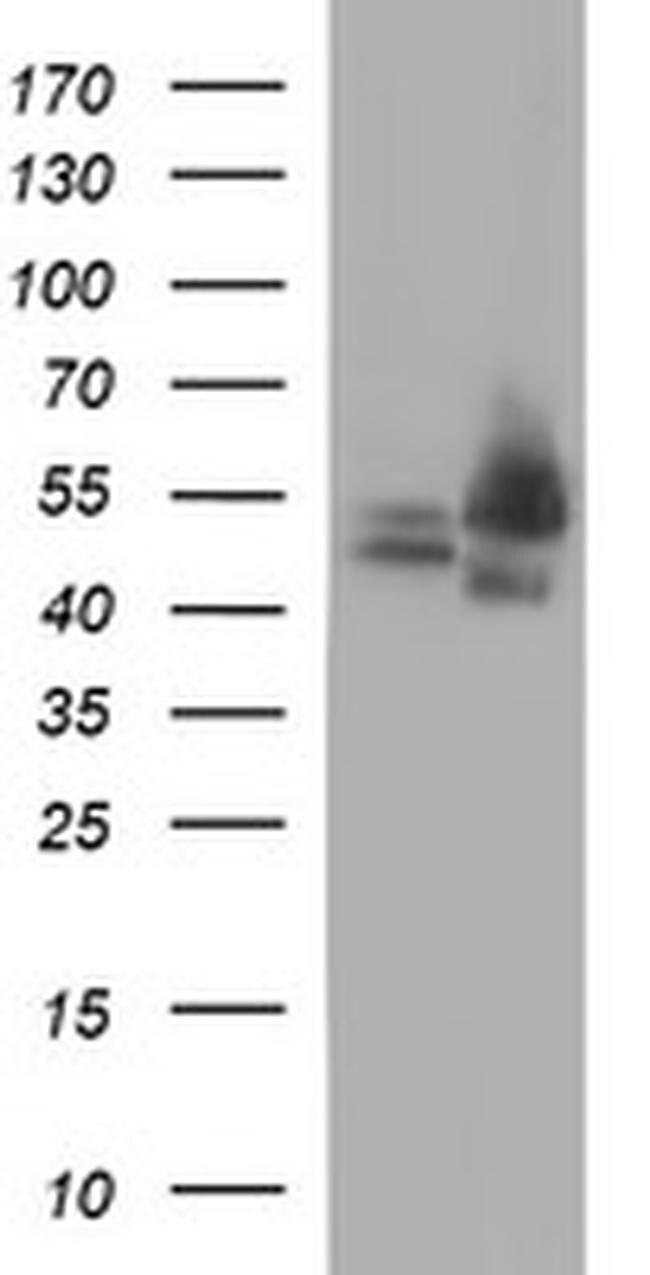 CDC123 Mouse anti-Human, Clone: OTI2D4, liquid, TrueMAB  100 µL; Unconjugated