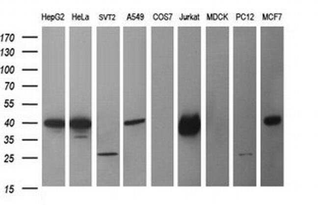 CDC123 Mouse anti-Human, Mouse, Clone: OTI5C7, liquid, TrueMAB  100 µL;