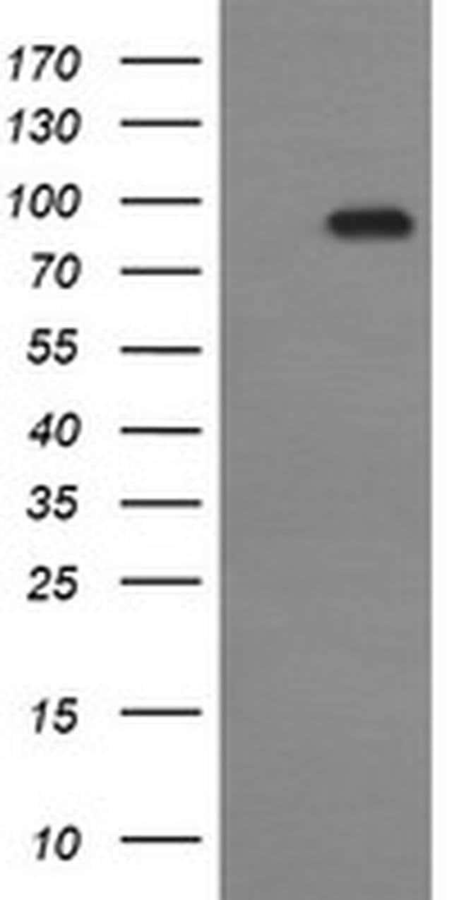 CDH3 Mouse anti-Human, Clone: OTI2D5, liquid, TrueMAB  100 µL; Unconjugated