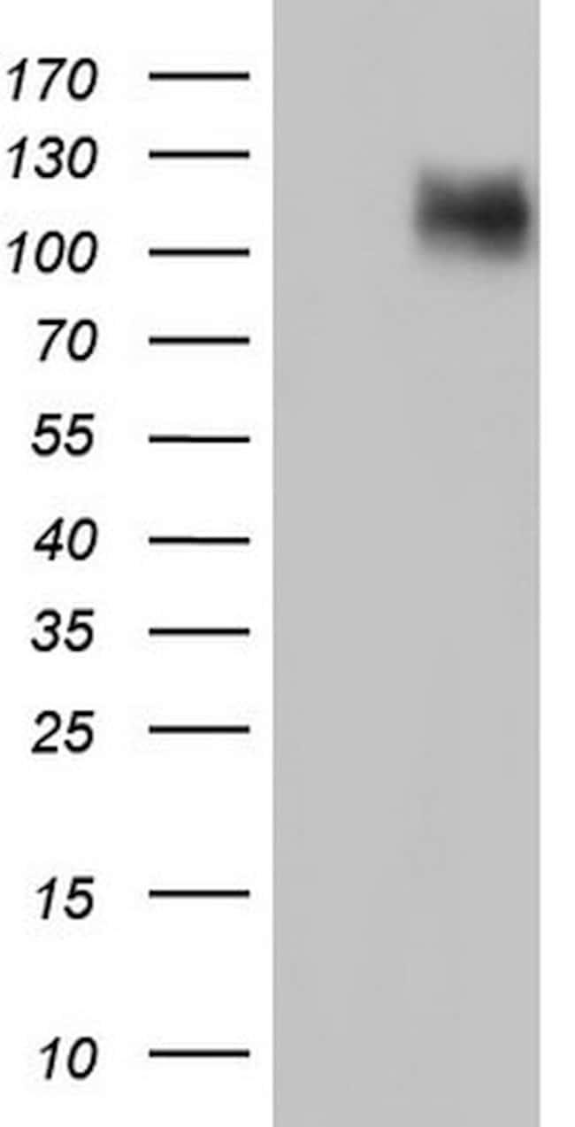 CDH4 Mouse anti-Human, Clone: OTI4D9, lyophilized, TrueMAB  100 µg;