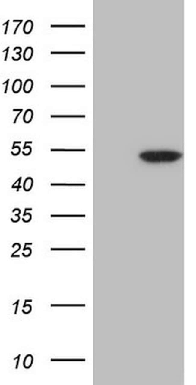 CDKL1 Mouse anti-Human, Clone: OTI3E8, lyophilized, TrueMAB  100 µg;