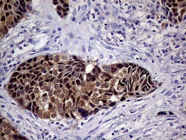 CDKN2A Mouse anti-Human, Clone: OTI11E9, lyophilized, TrueMAB  100 µg;