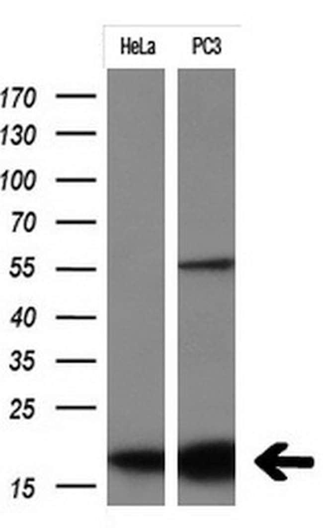 CDKN2A Mouse anti-Human, Clone: OTI7H6, lyophilized, TrueMAB  100 µg;