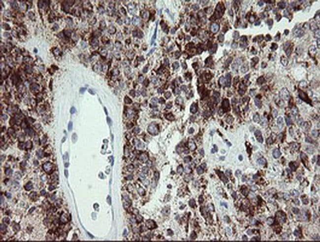 CDKN2B Mouse anti-Human, Clone: OTI2D11, liquid, TrueMAB  100 µL;