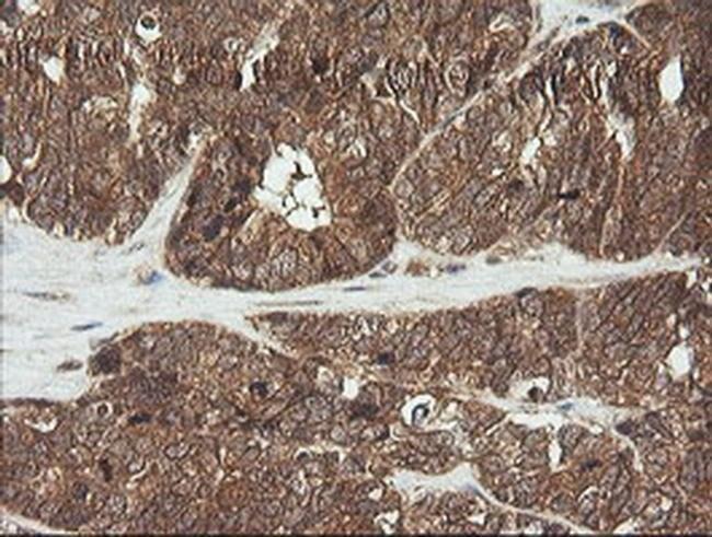 CDKN2B Mouse anti-Human, Clone: OTI8H4, liquid, TrueMAB  100 µL; Unconjugated