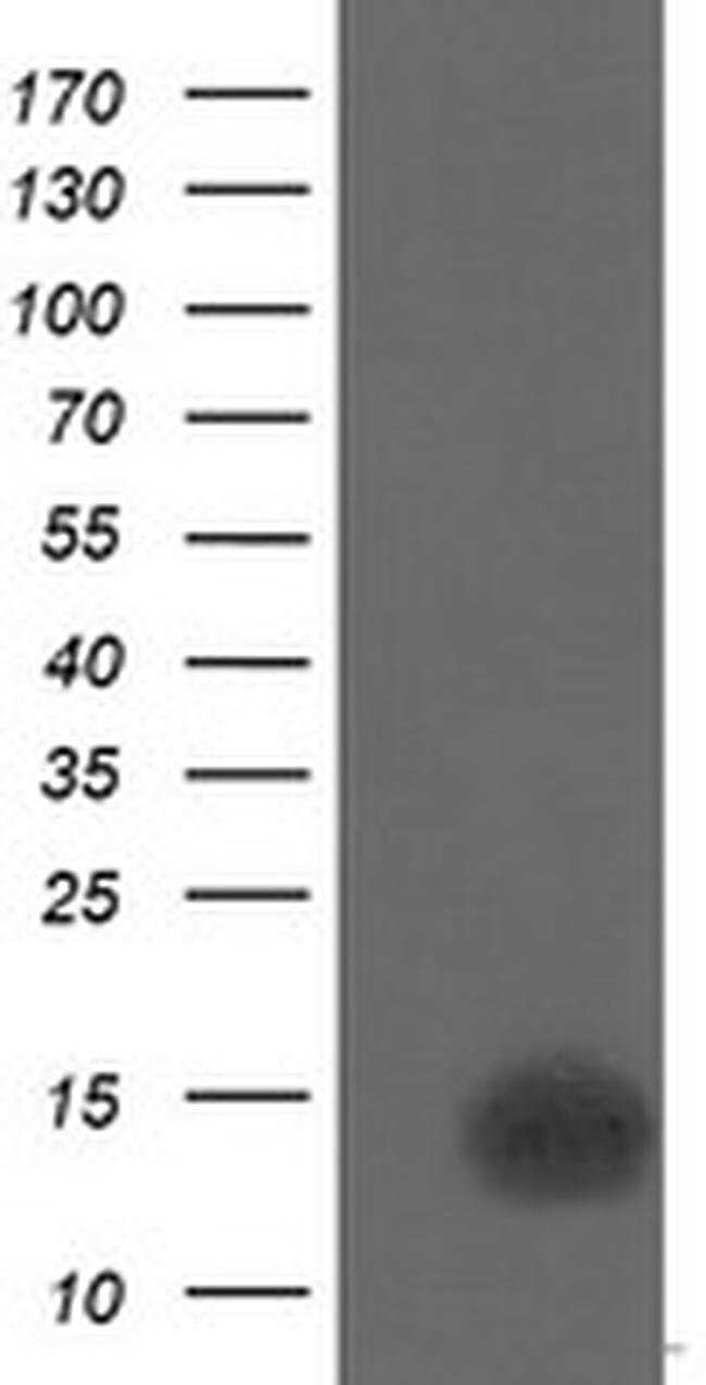 CDKN2B Mouse anti-Human, Clone: OTI1H5, liquid, TrueMAB  100 µL; Unconjugated