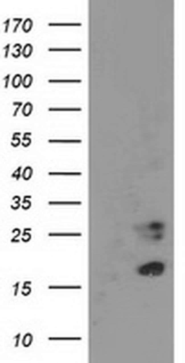 CDKN3 Mouse anti-Human, Clone: OTI2E11, liquid, TrueMAB  100 µL; Unconjugated