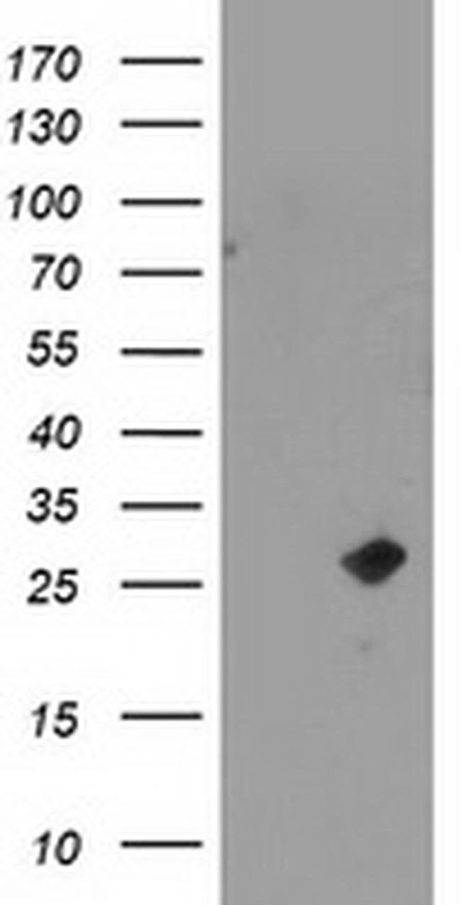 CDKN3 Mouse anti-Human, Clone: OTI2H1, liquid, TrueMAB  100 µL; Unconjugated