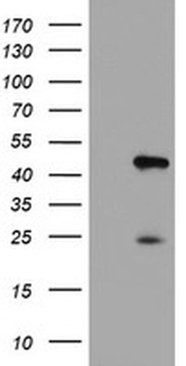 CENPH Mouse anti-Human, Clone: OTI1C2, liquid, TrueMAB  100 µL; Unconjugated