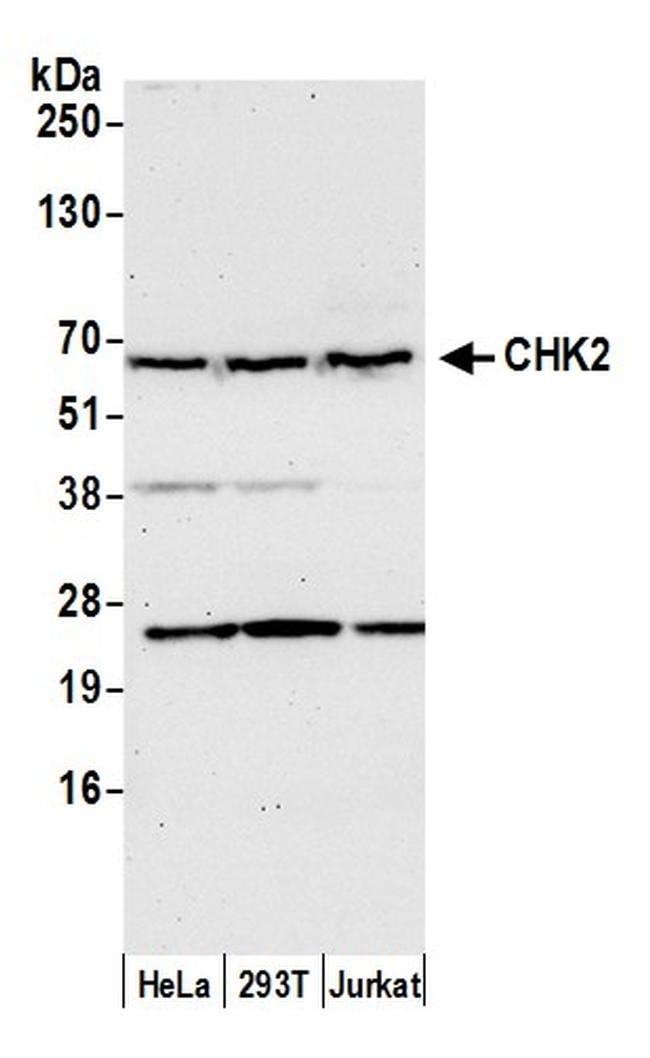 Chk2, Polyclonal, Bethyl Laboratories 100 μL; Unconjugated:Antibodies