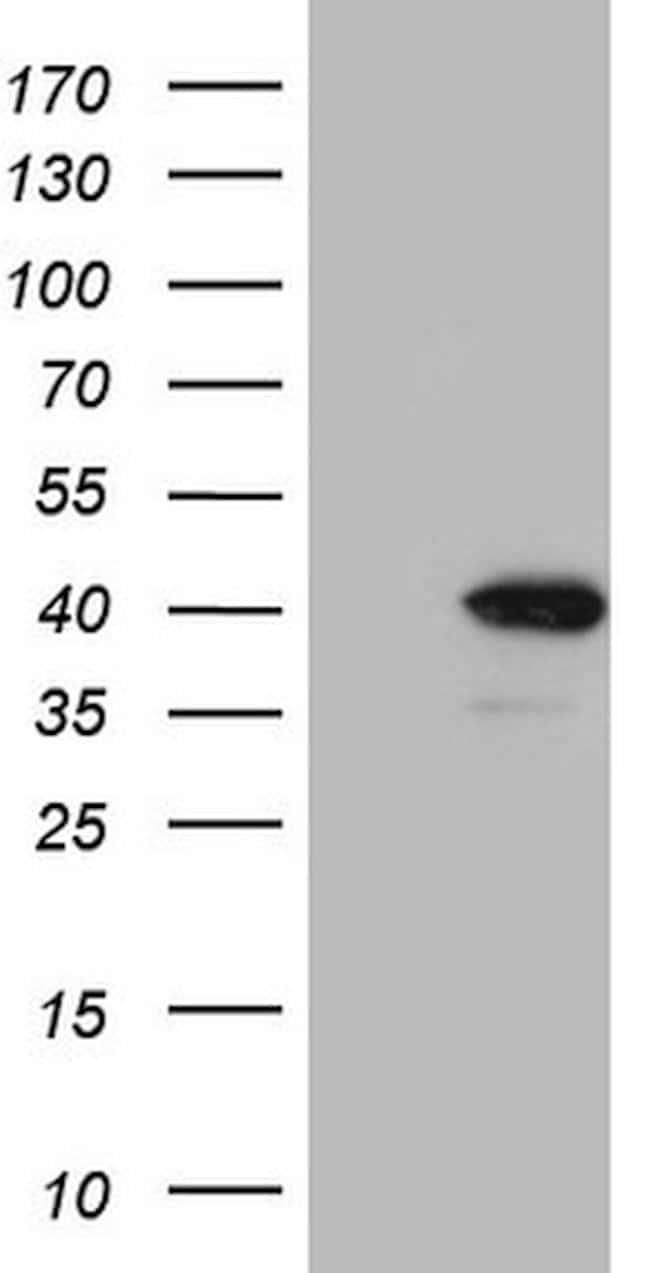 CHMP5 Mouse anti-Human, Clone: OTI2E6, lyophilized, TrueMAB  100 µg;