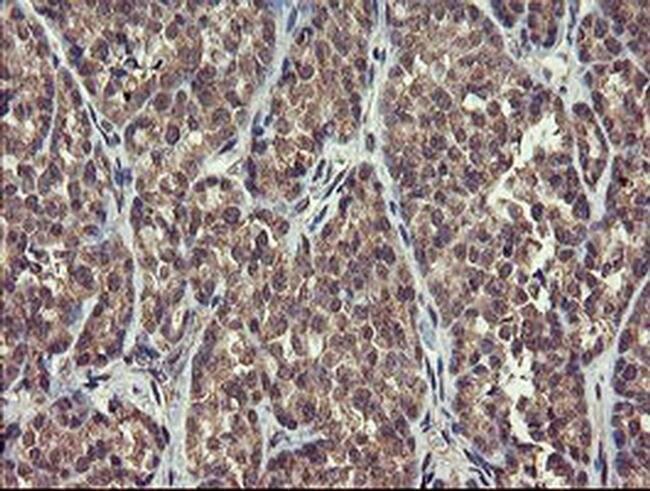 CHN1 Mouse anti-Human, Clone: OTI1B7, liquid, TrueMAB  100 µL; Unconjugated