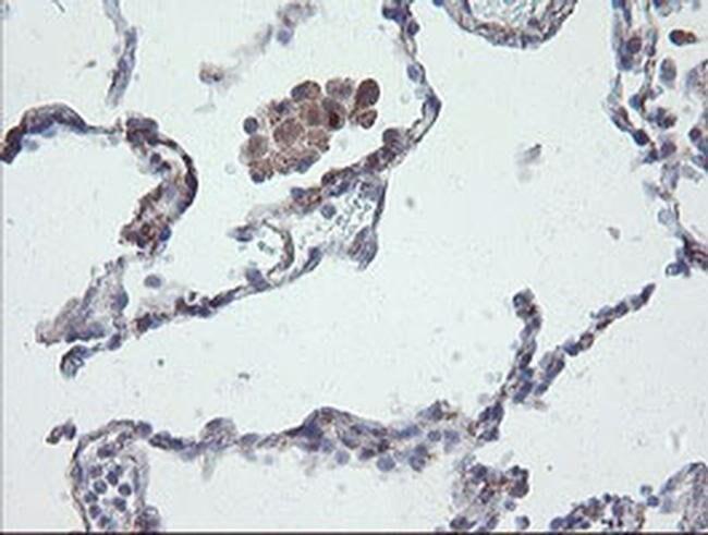 CHN1 Mouse anti-Human, Clone: OTI2D10, liquid, TrueMAB  100 µL; Unconjugated