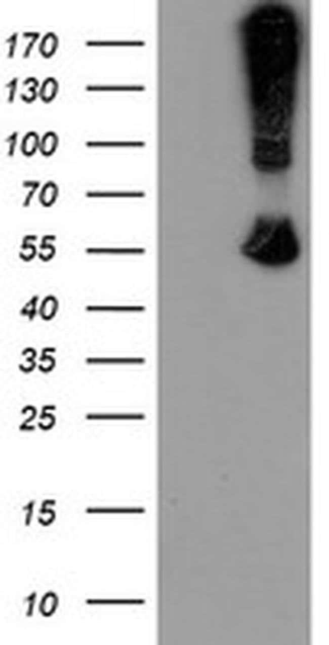 CHN1 Mouse anti-Human, Clone: OTI1C9, liquid, TrueMAB  100 µL; Unconjugated