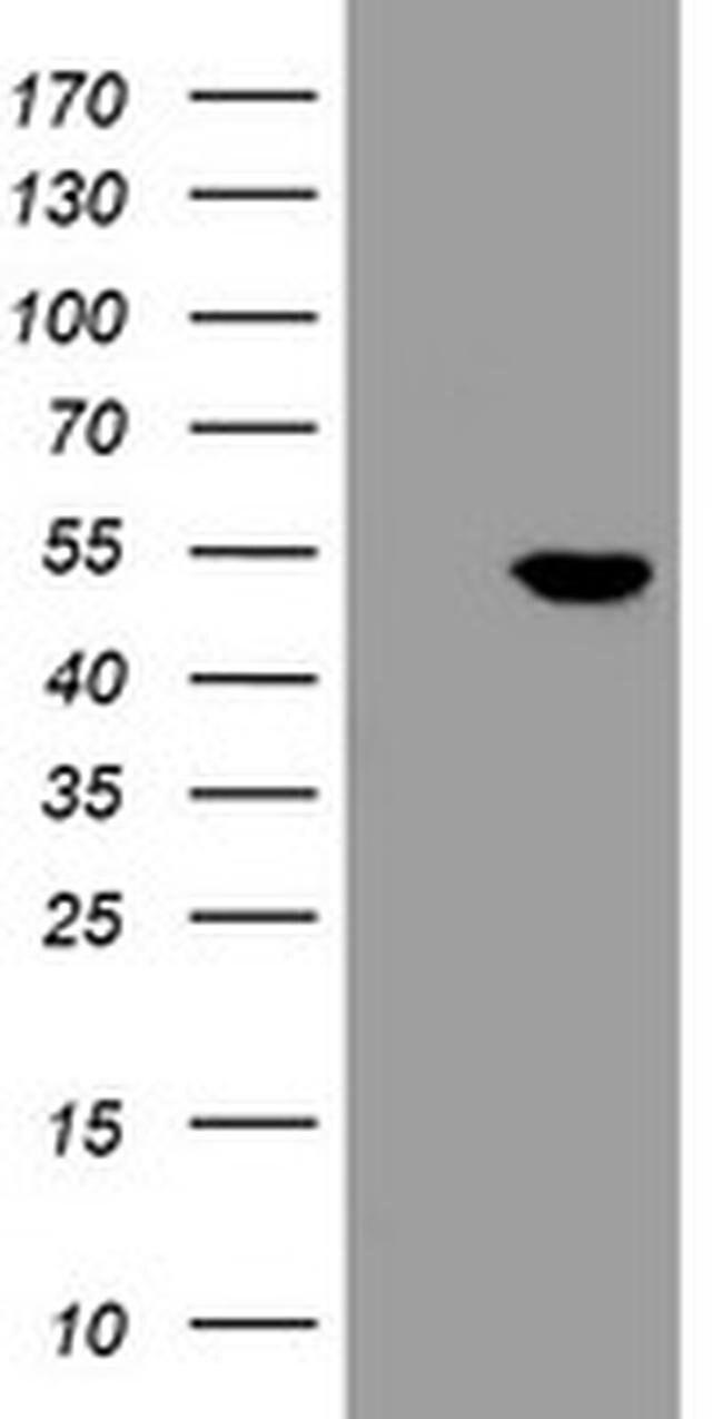 CHN1 Mouse anti-Human, Clone: OTI4D1, liquid, TrueMAB  100 µL; Unconjugated