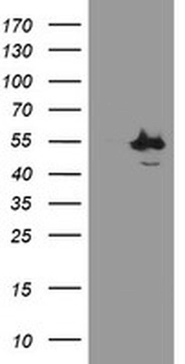 CHN1 Mouse anti-Human, Clone: OTI2G6, liquid, TrueMAB  30 µL; Unconjugated