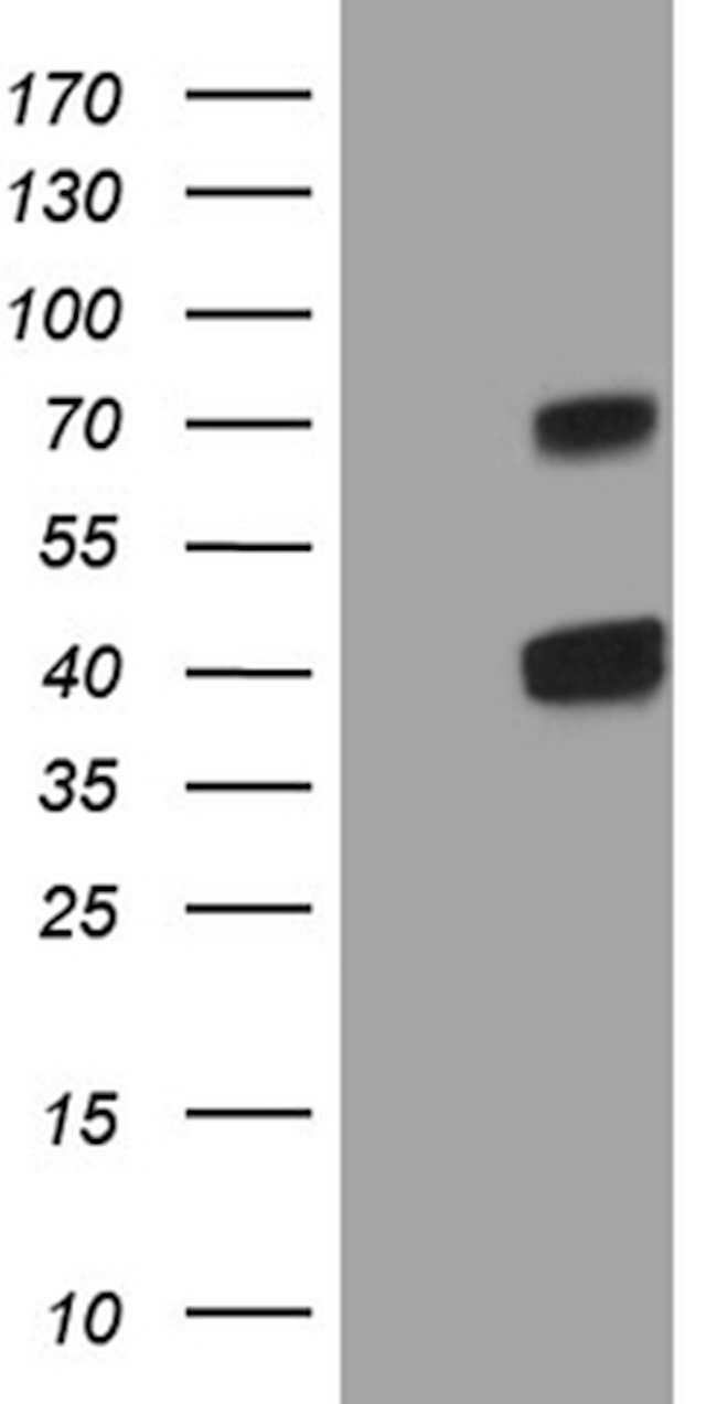 CLEC1A Mouse anti-Human, Clone: OTI1H8, lyophilized, TrueMAB  100 µg;