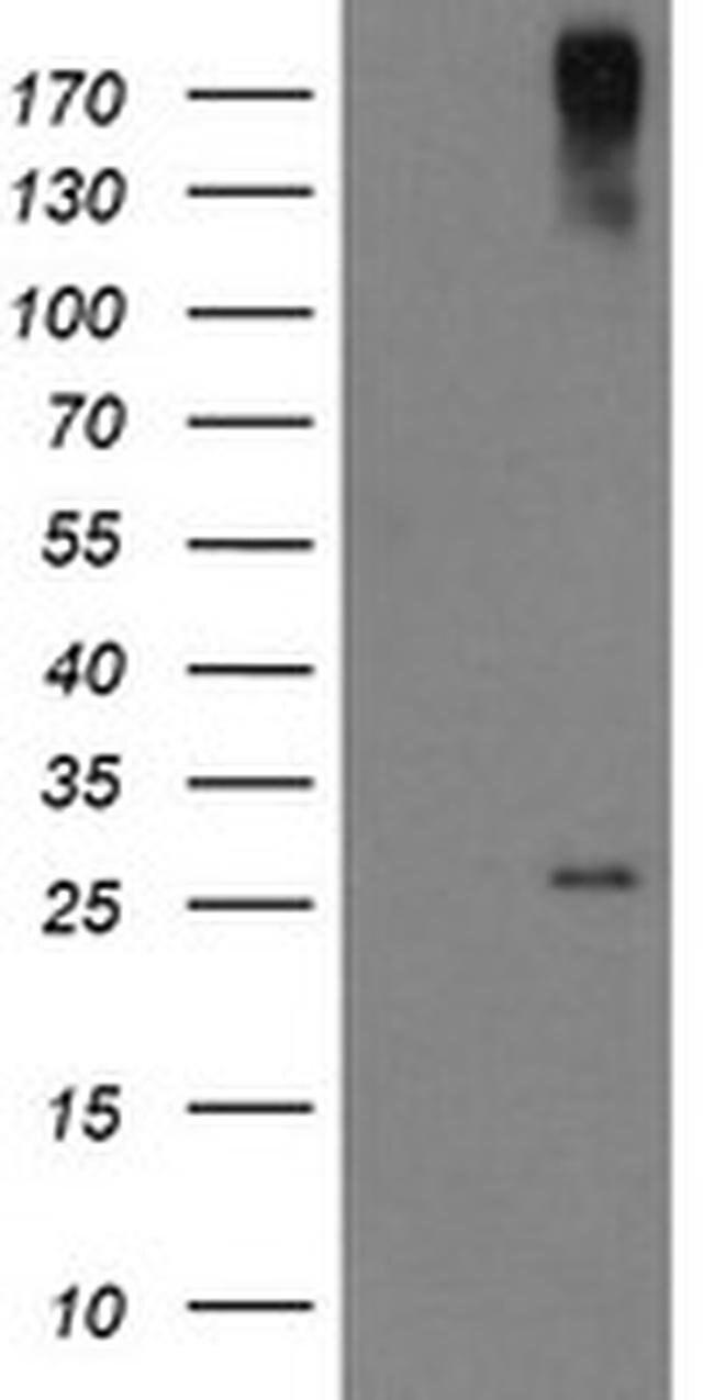 CLEC4E Mouse anti-Human, Clone: OTI2H4, liquid, TrueMAB  100 µL; Unconjugated