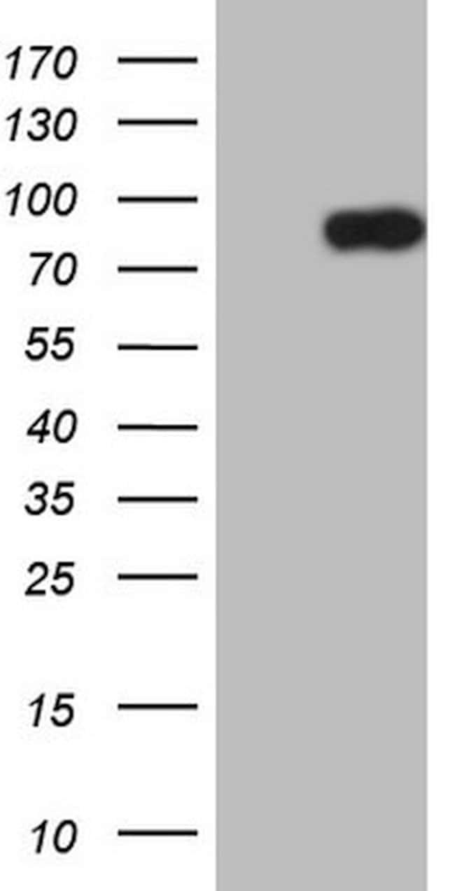 CLINT1 Mouse anti-Human, Clone: OTI3H9, lyophilized, TrueMAB  100 µg;