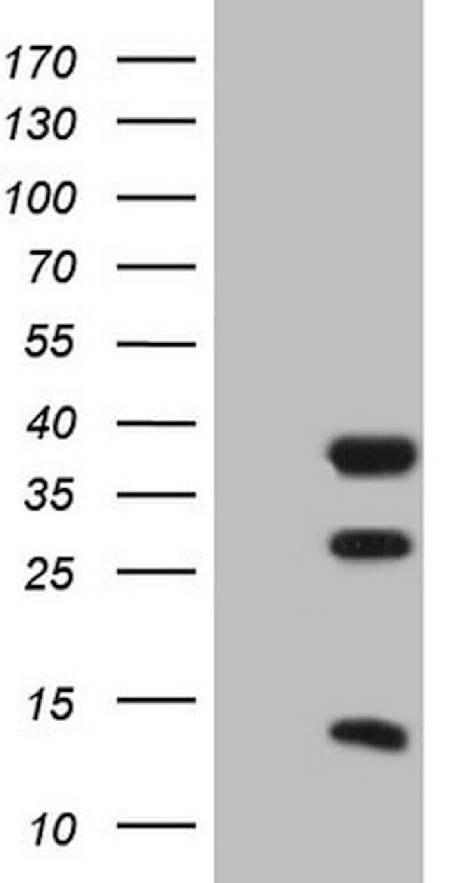 CLOCK Mouse anti-Human, Clone: OTI1G3, lyophilized, TrueMAB  100 µg;