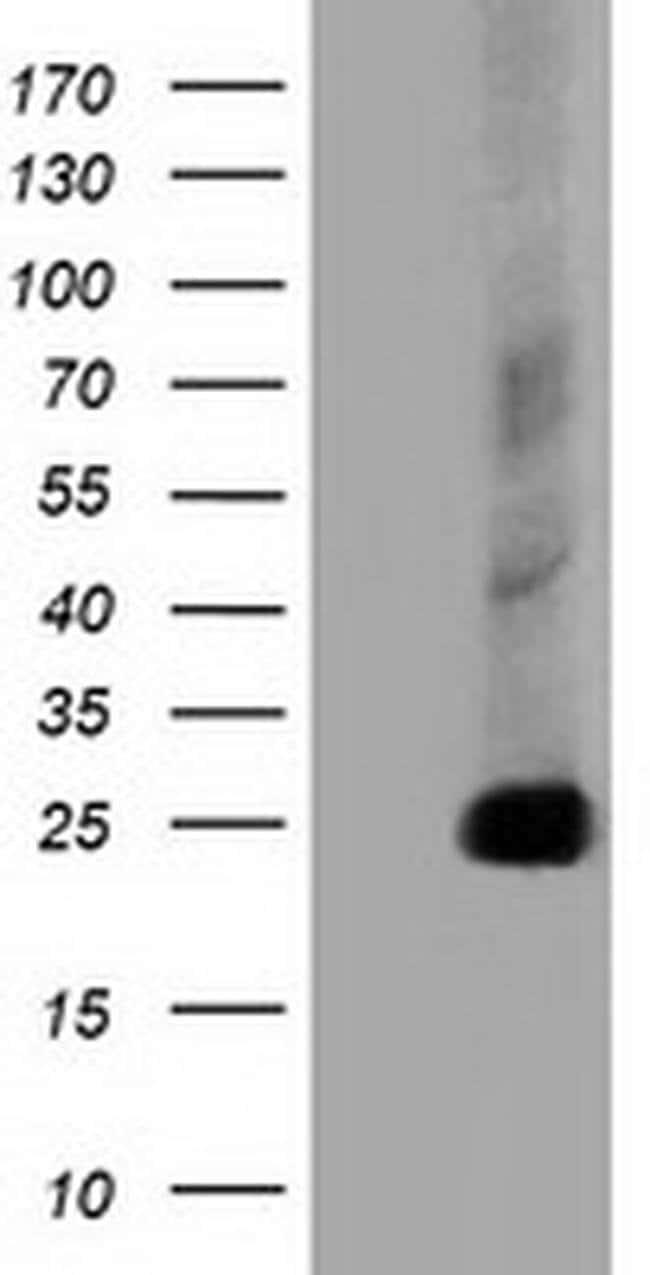 CLPP Mouse anti-Canine, Human, Rat, Clone: OTI1D8, liquid, TrueMAB  100