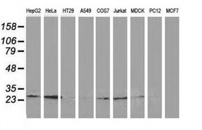 CLPP Mouse anti-Canine, Human, Clone: OTI1E2, liquid, TrueMAB  100 µL;