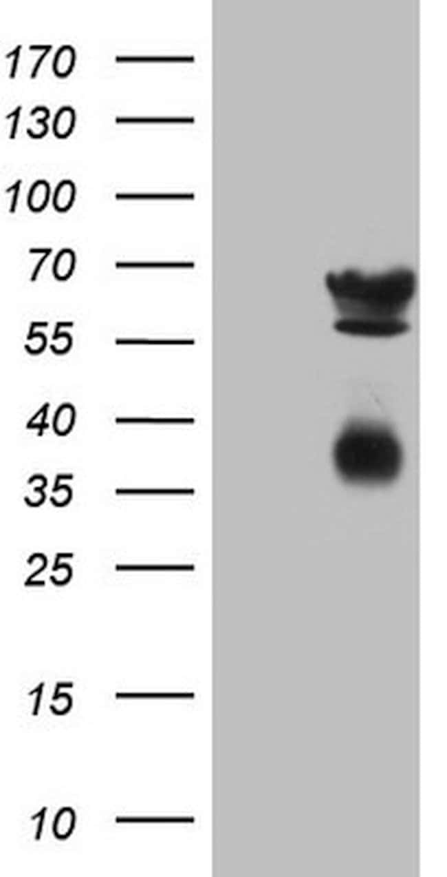 CLU Mouse anti-Human, Clone: OTI5D3, lyophilized, TrueMAB  100 µg;